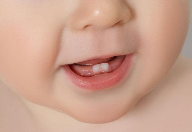 bebeklerde-dis-cikarma-belirtileri-6331768